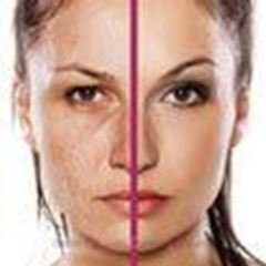Picture for category Oily and Combination Skin
